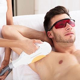 Laser Haarentfernung Rabatt Aktion für den Mann