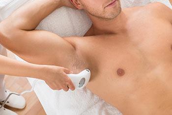 Kosten der Laser Haarentfernung beim Mann